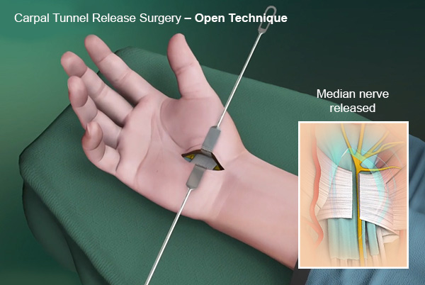 Median Nerve Perth Carpal Tunnel Release Surgery Nedlands